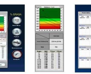 Densitómetro Oseo Axial De Rayos X